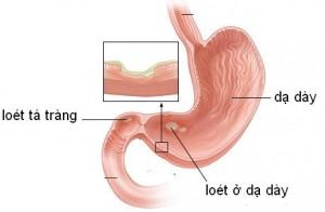 cao ban long trị viêm loét dạ dày tá tràng